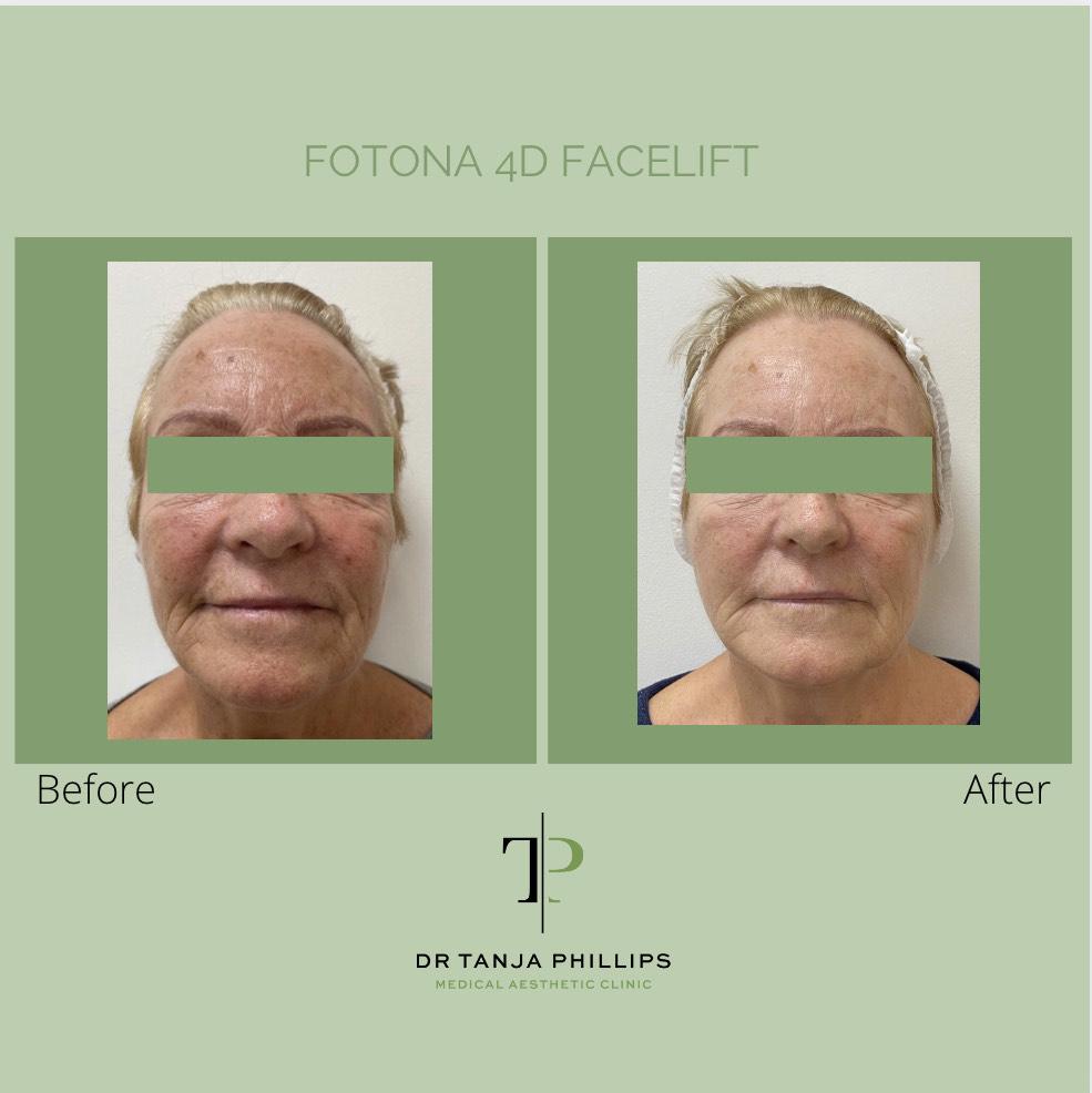 Fotona facelift results